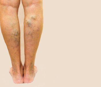Varices: su origen y los tratamientos para eliminarlas