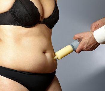 Mitos frente a la liposucción
