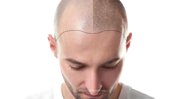 ¿Por qué se produce y como tratar la alopecia?