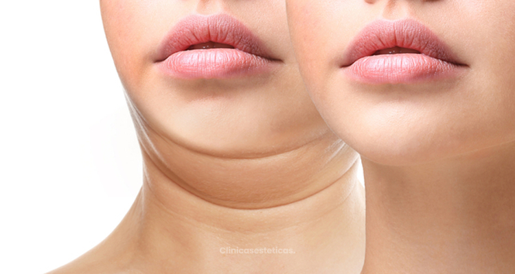 ¿Cómo lograr una cara más delgada y angulosa?