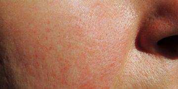¿Es el ácaro Demodex folliculoru un causante de la rosácea?