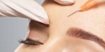 El Blanching, el método que alisa las arrugas.