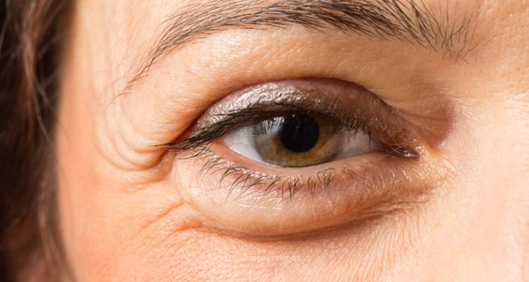 La lucha contra las ojeras y bolsas en los ojos