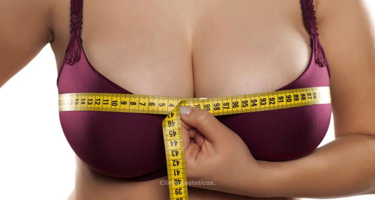 ¿Quiénes pueden optar a una reducción de pechos?