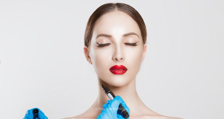 Post Operatorio de liposucción de papada