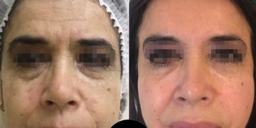 ¿En que consiste un rejuvenecimiento facial?