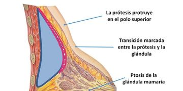 Deformidad en doble burbuja después de una cirugía de implante mamario