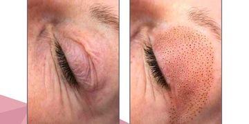 Plasma-pen, la tecnología que reemplaza cirugías en rostro