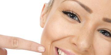 Lo que quieres saber sobre el blanqueamiento dental