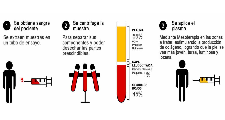 plasma-rico-en-plaquetasok.jpg