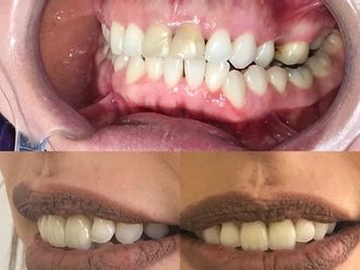 Implantes dentales - 619585