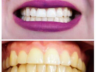 Blanquear dientes - 634914