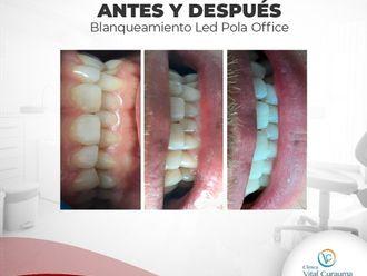 Blanquear dientes-644622