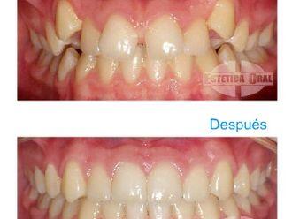 Ortodoncia-335619