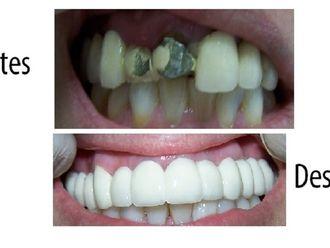 Prótesis dentales - 575162