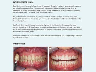 Blanqueamiento dental Antes-despues