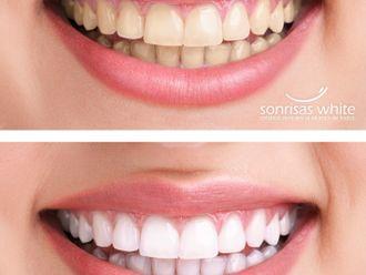 Blanquear dientes-416658
