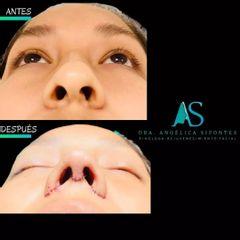 Rinoplastia - Dra. Angelica Sifontes Muñoz