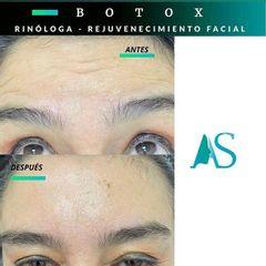 Bótox - Dra. Angelica Sifontes Muñoz