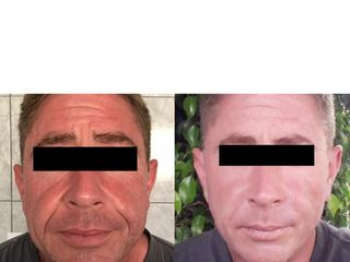 doctora acido hilos botox.png