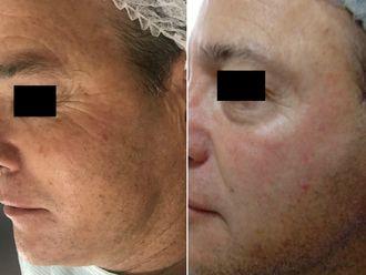Rejuvenecimiento facial - 632389