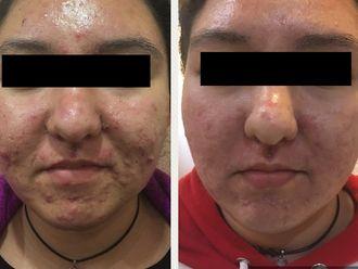 Tratamiento acné - 632390