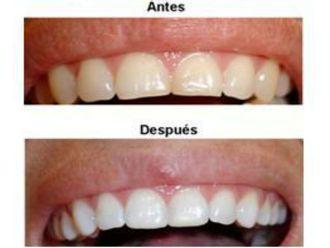 Limpieza dental - 500856