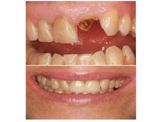 Extracción de dientes-500872