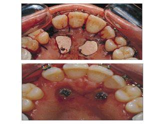 Endodoncia-500873