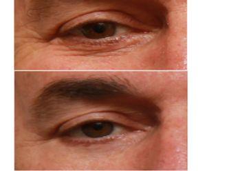 Tratamiento de bolsas en los ojos - 501503