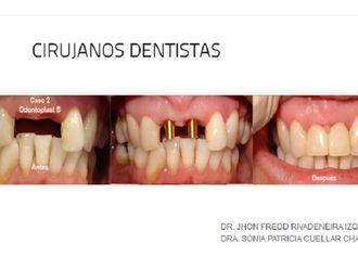 Implantes dentales - 573504