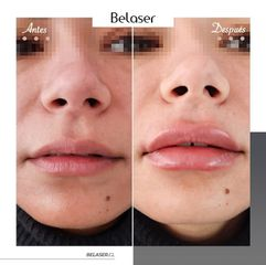 Aumento de labios - Belaser