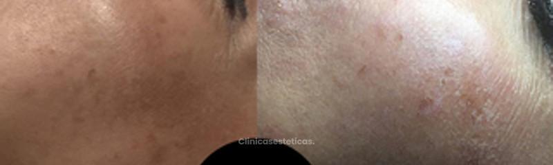 Elimina manchas de la piel