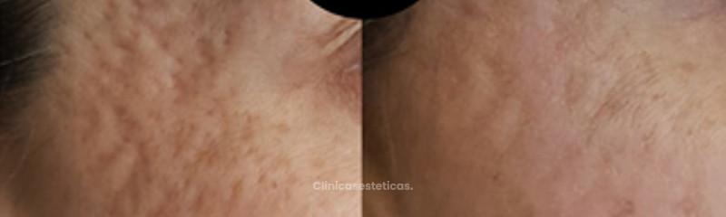Secuelas del acné