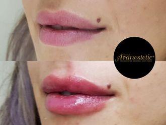 Aumento de labios - 632118