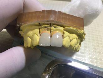 Prótesis dentales - 624391