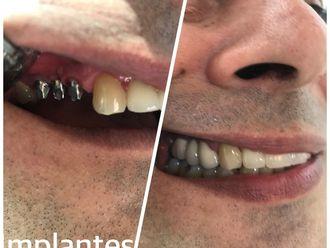 Implantes dentales - 624393
