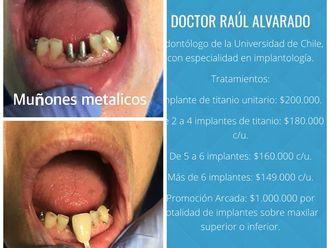 Prótesis dentales - 624397