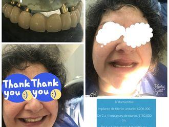 Implantes dentales - 624399