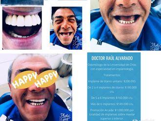 Implantes dentales - 624400
