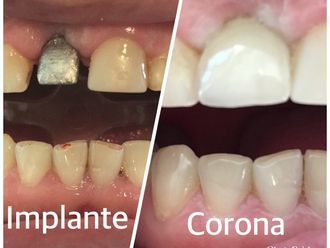 Implantes dentales - 624402