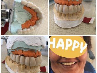 Implantes dentales - 624403