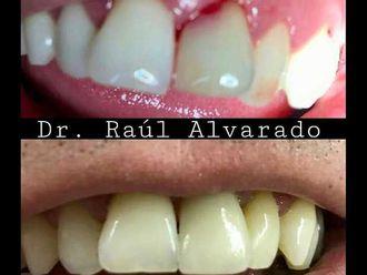 Implantes dentales - 624411