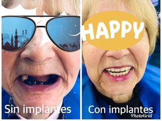 Implantes dentales - 624475