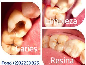 Limpieza dental - 624891