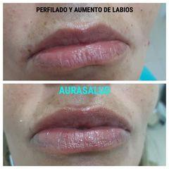 Aumento de labios - AURASALUD