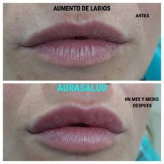 Aumento y perfilado de labios - AURASALUD