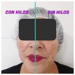 Hilos tensores faciales - AURASALUD