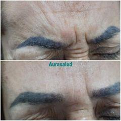 Botox entrecejo - AURASALUD