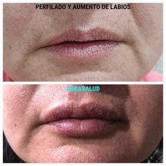 Perfilado y aumento de labios - AURASALUD